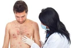 Обращение к врачу при подозрении на корь