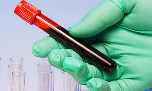 Анализ крови на липиды