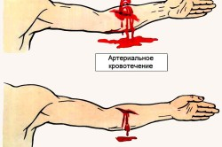 Сколько нужно потерять крови для смерти