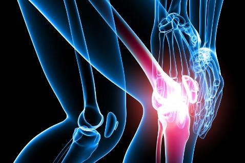 артрит в колене