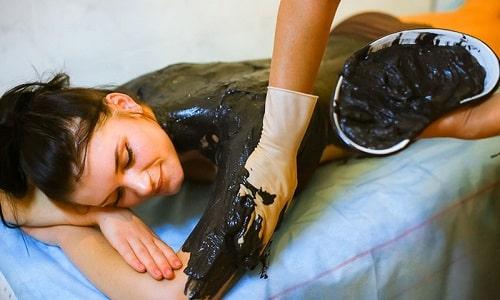 Для более быстрого восстановления здоровья больному рекомендованы аппликации лечебной грязи