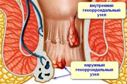 Схема кровотечения при геморрое