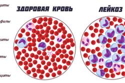 Схема лейкоза