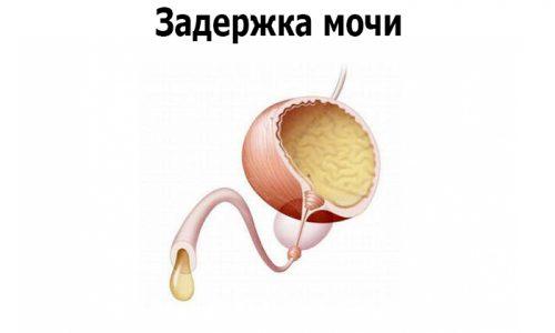 Секвестрирующая грыжа поясничного отдела приводит к различным отклонениям мочеиспускания