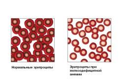 Анемия как последствие и причина обильных кровотечений