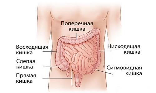 Проблема рака сигмовидной кишки