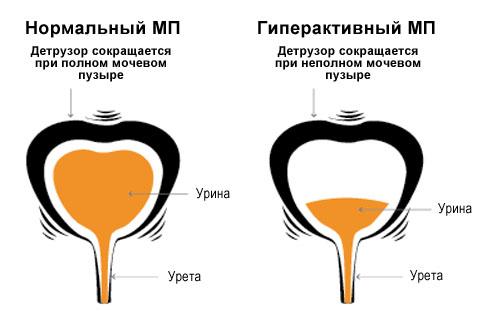 нормальный и гиперактивный МП