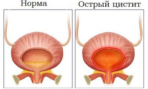 Воспаление мочевого пузыря у мужчин наблюдается крайне редко