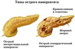 Панкреатит - причина повышения холестерина в крови