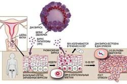 Обнаружение вируса папилломы человека - показание к проведению биопсии шейки матки