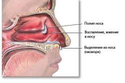 Полипы носа и околоносовых пазух