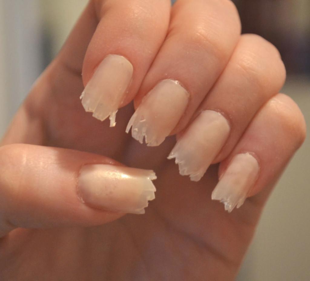 поломанные ногти