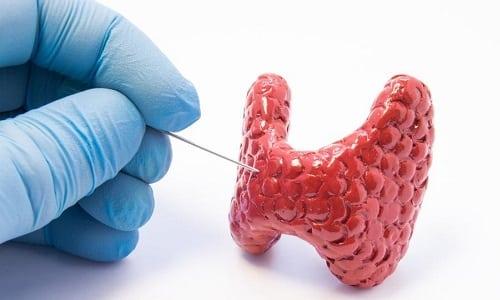 Пункция щитовидной железы (биопсия) назначается на основании результатов УЗИ и при подозрении на наличие злокачественного новообразования