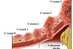 Схема рака матки