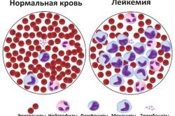 Схема рака крови