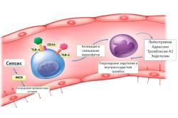 Сепсис - причина гемолиза эритроцитов