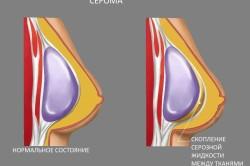 Схема серомы после операции по увеличению груди