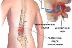 Клинические особенности диареи