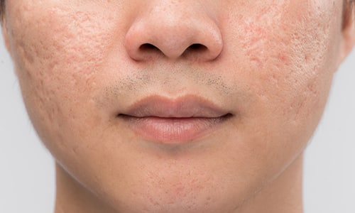 У людей с ослабленным иммунитетом период выздоровления при герпесе сопровождается шрамами и следами