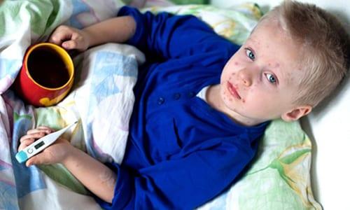 Высокая температура тела (+38... 39°С) один из симптомов появления герпеса у ребенка
