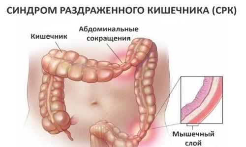 Синдром раздраженного кишечника является одним из поводов для ПЦР-исследования