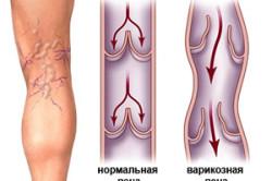Варикоз - следствие плохой свертываемости крови