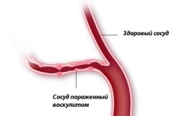 Вид сосуда при геморрагическом васкулите