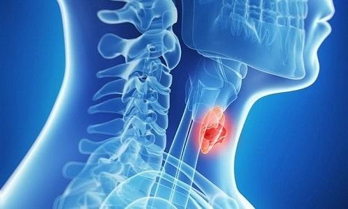 Диффузный зоб щитовидки - это заболевание, которое характеризуется равномерным поражением ткани данного органа без формирования узлов