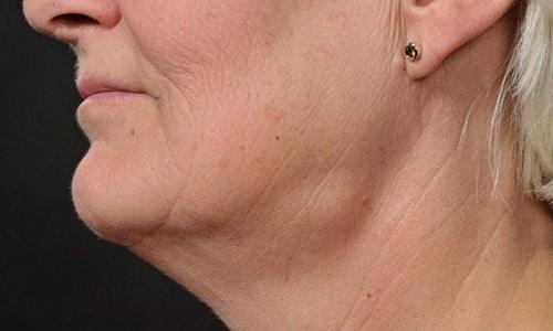 Различные формы узловых образований щитовидной железы носят доброкачественный характер (киста, узловой коллоидный зоб, аденома)
