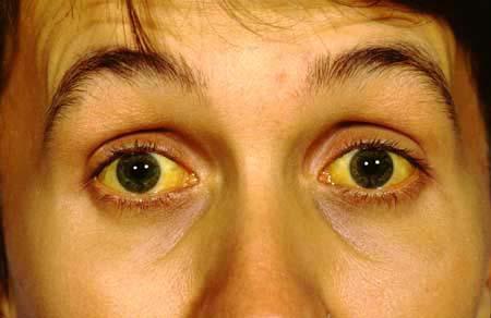 пожелтевшие глаза