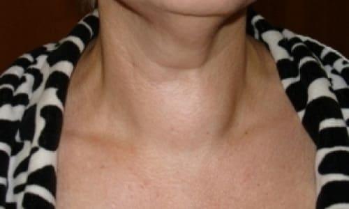 Единственный момент, на который могут обратить внимание пациенты – образование узлового типа в области щитовидки